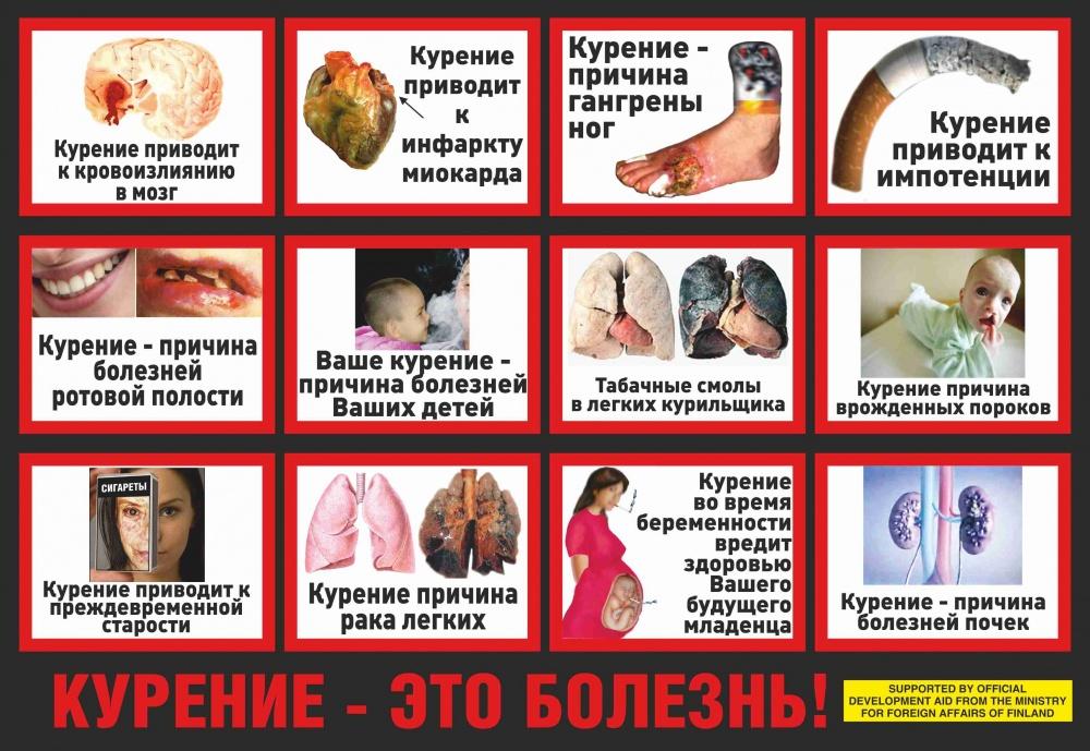О последствиях курения картинки