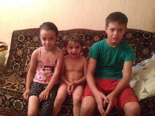 болезнь крона у ребенка фото