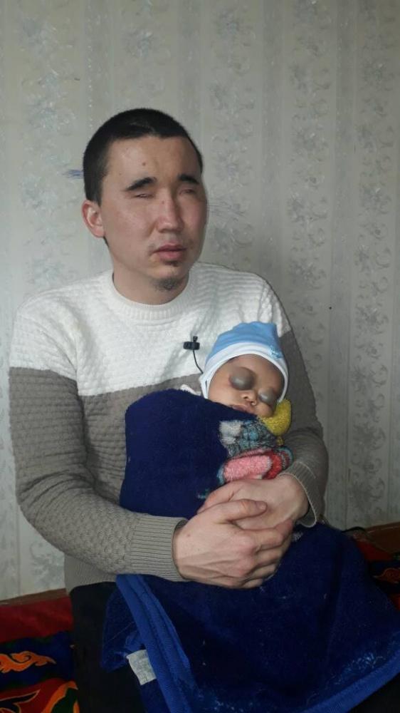 У незрячего мужчины родился ребенок со странными веками. Врачи в недоумении
