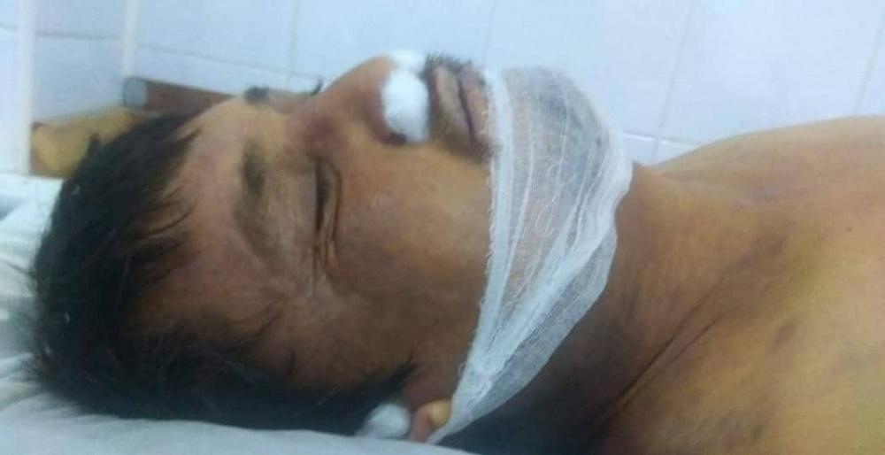 В Бишкеке обнаружен труп мужчины. Милиция просит помочь опознать (осторожно, фото!)